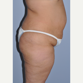35-44 year old woman treated with Tummy Tuck before 3589986