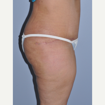 35-44 year old woman treated with Tummy Tuck after 3589986