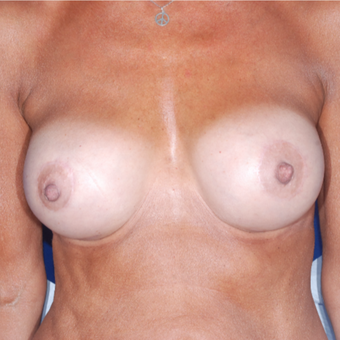 55-64 year old woman treated with Breast Implant Revision after 3694999