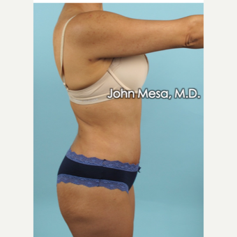 35-44 year old woman treated with Brazilian Tummy Tuck ( Lipo-Abdominoplasty) after 3659779