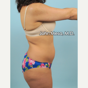 35-44 year old woman treated with Brazilian Tummy Tuck ( Lipo-Abdominoplasty) before 3659779