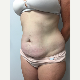 41 year old woman treated with Tummy Tuck and Liposuction before 3822279