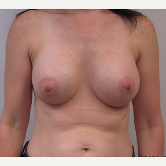 44 Year old woman desiring larger breasts after 2267201