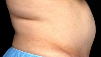 55-64 year old woman treated with CoolSculpting before 1801141