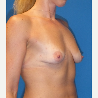Breast Augmentation before 3807211