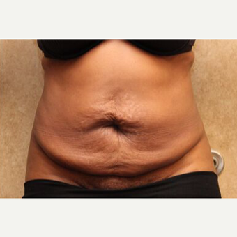 Tummy tuck with Liposuction before 3454611