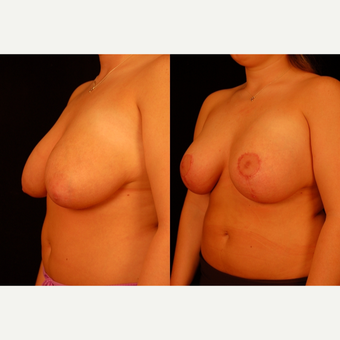 25-34 year old woman treated with Breast Lift after 3659815