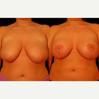 25-34 year old woman treated with Breast Lift before 3659815