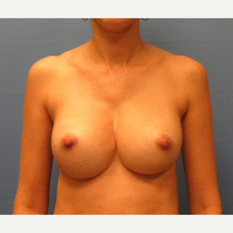 35-44 year old woman treated with Breast Implant Revision after 3635987