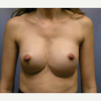 35-44 year old woman treated with Breast Implant Revision before 3635987
