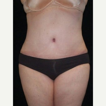 Tummy Tuck after 1632174