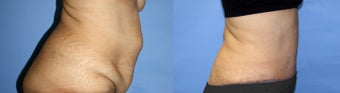 Abdominoplasty/Tummy Tuck before 1164941