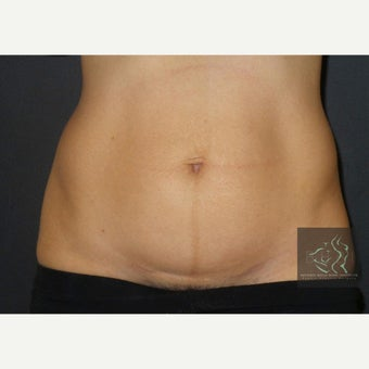 35-44 year old woman treated with CoolSculpting before 2653841