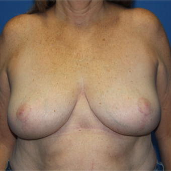 65-74 year old woman treated with Breast Reduction after 3265763