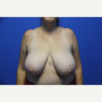 65-74 year old woman treated with Breast Reduction before 3265763