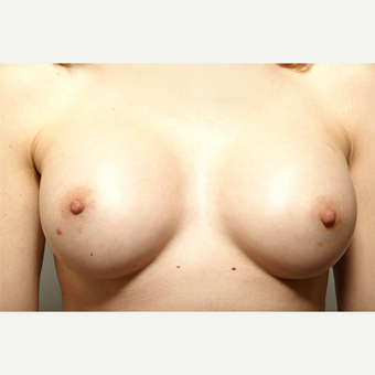 18-24 year old woman treated with Breast Augmentation after 3061431