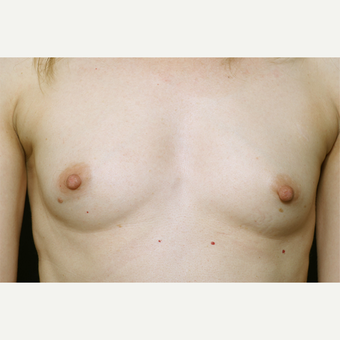 18-24 year old woman treated with Breast Augmentation before 3061431