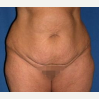 45-54 year old woman treated with Tummy Tuck before 3009768