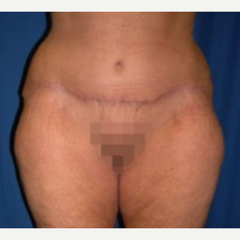 45-54 year old woman treated with Tummy Tuck after 3009768
