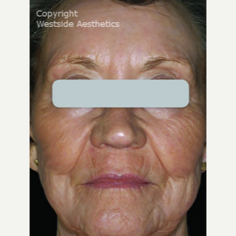 Deep Skin Resurfacing after 3075696