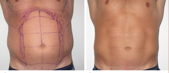 25-34 year old man treated with Vaser Liposuction before 4599304