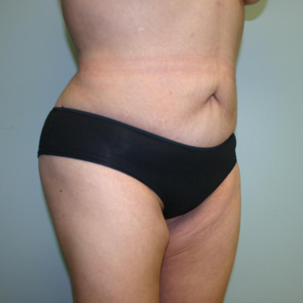 Woman treated with Liposuction after 3442271