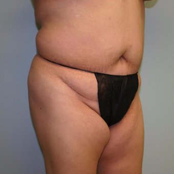 Woman treated with Liposuction before 3442271