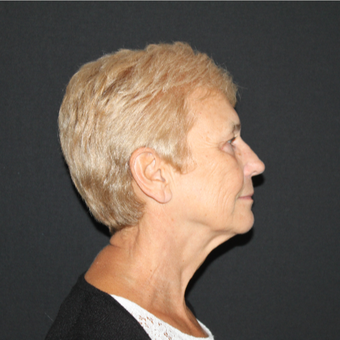 65-74 year old woman treated with Lower Face Lift before 3127273