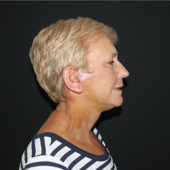 65-74 year old woman treated with Lower Face Lift after 3127273