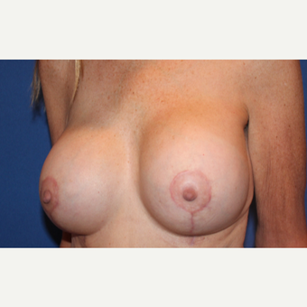 57 year old woman treated with Breast Implant Revision after 3691959