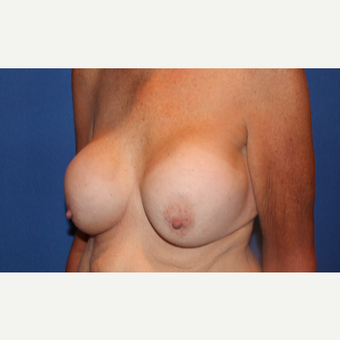 57 year old woman treated with Breast Implant Revision before 3691959