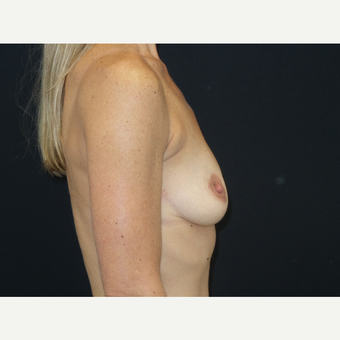 25-34 year old woman treated with Breast Implants before 3652096
