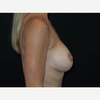 25-34 year old woman treated with Breast Implants after 3652096