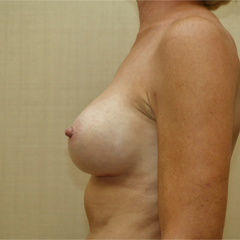 55-64 year old woman treated with Breast Augmentation after 3036738