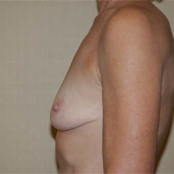 55-64 year old woman treated with Breast Augmentation before 3036738