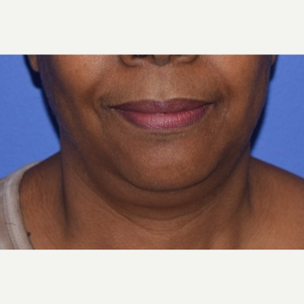 55-64 year old woman treated with Chin Liposuction before 3638236