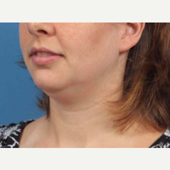 25-34 year old woman treated with Chin Liposuction before 3787638