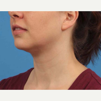 25-34 year old woman treated with Chin Liposuction after 3787638