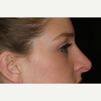 25-34 year old woman treated with Rhinoplasty after 3569727