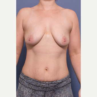 25-34 year old woman treated with Breast Augmentation before 3735145