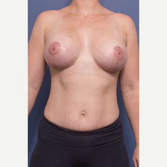 25-34 year old woman treated with Breast Augmentation after 3735145