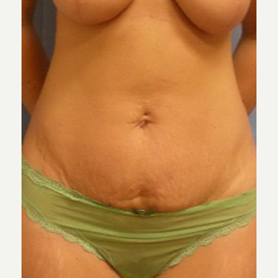 35-44 year old woman treated with Tummy Tuck before 3537152