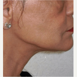 45-54 year old woman treated with Facelift after 3500844
