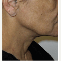 45-54 year old woman treated with Facelift before 3500844