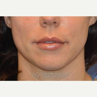 Restylane to lips after 1842738