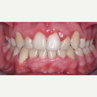 18-24 under year old man treated with Braces after 2447182
