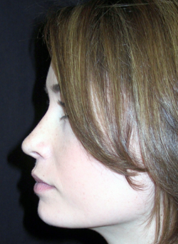 Rhinoplasty  after 1357367