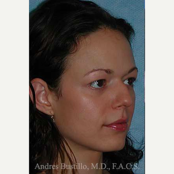 25-34 year old woman treated with Rhinoplasty before 3460987