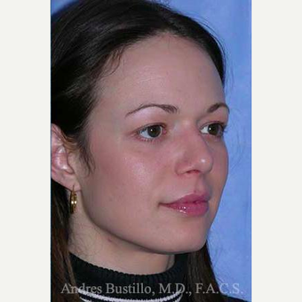 25-34 year old woman treated with Rhinoplasty after 3460987