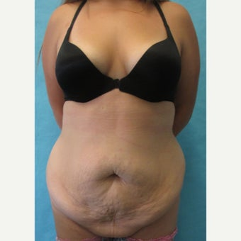 35-44 year old woman treated with Tummy Tuck before 2572408